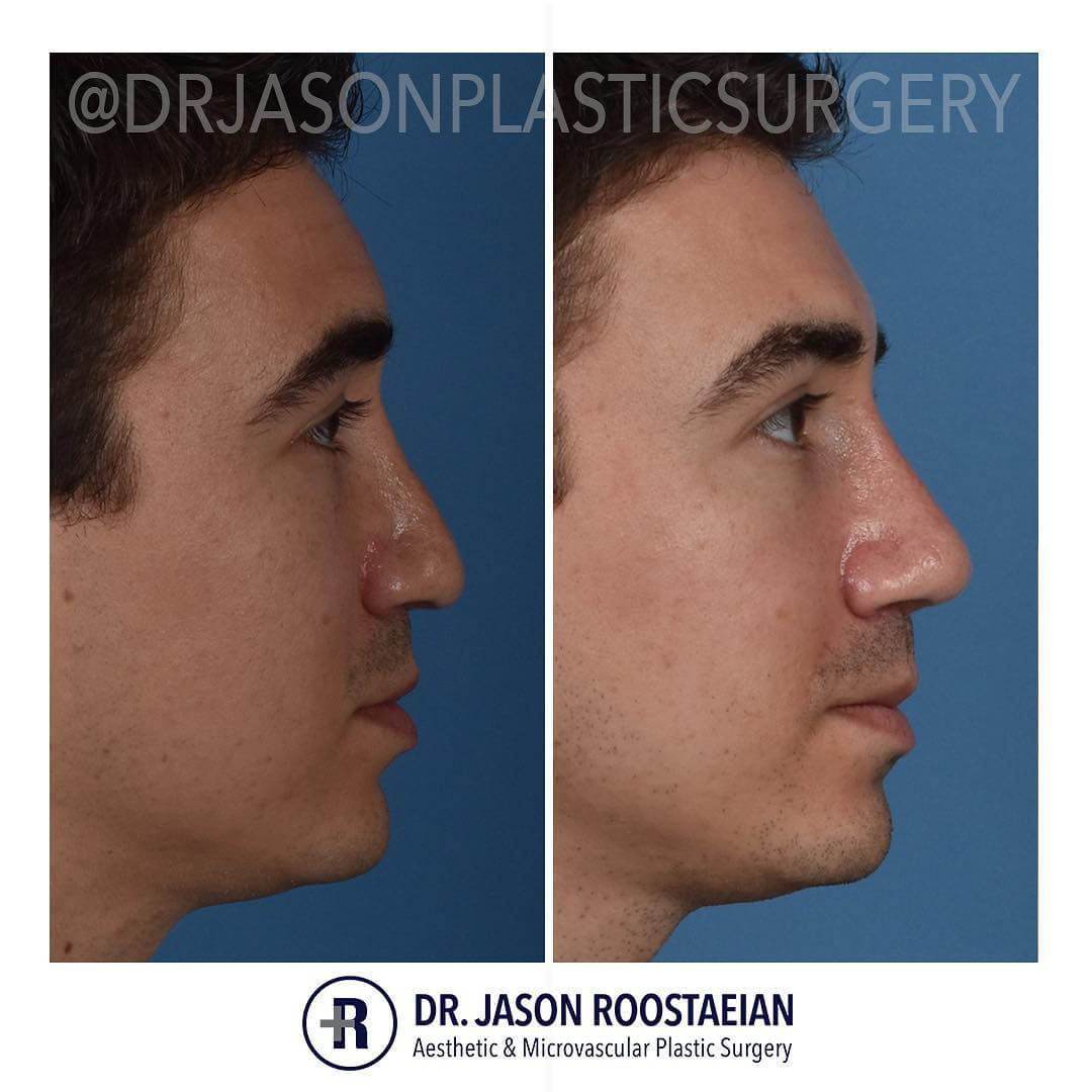 A right lateral before and after view of Dr. Jason Roostaeian's natural looking revision rhinoplasty male patient