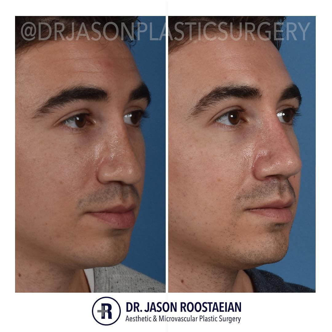 A right oblique before and after view of Dr. Jason Roostaeian's natural looking revision rhinoplasty male patient