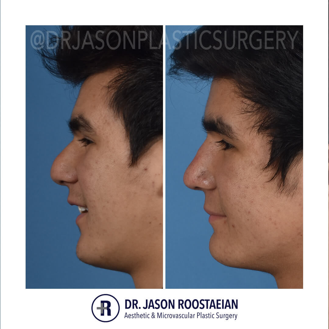 A left lateral smiling before and after view of Dr. Jason Roostaeian's natural looking rhinoplasty male patient