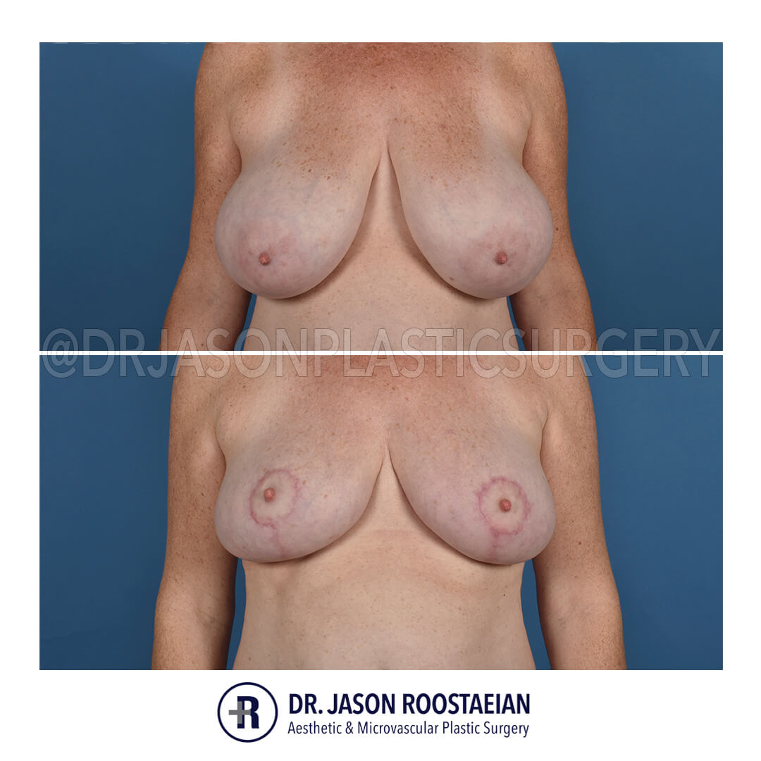 A frontal view of Dr. Jason Roostaeian's natural looking breast reduction patient