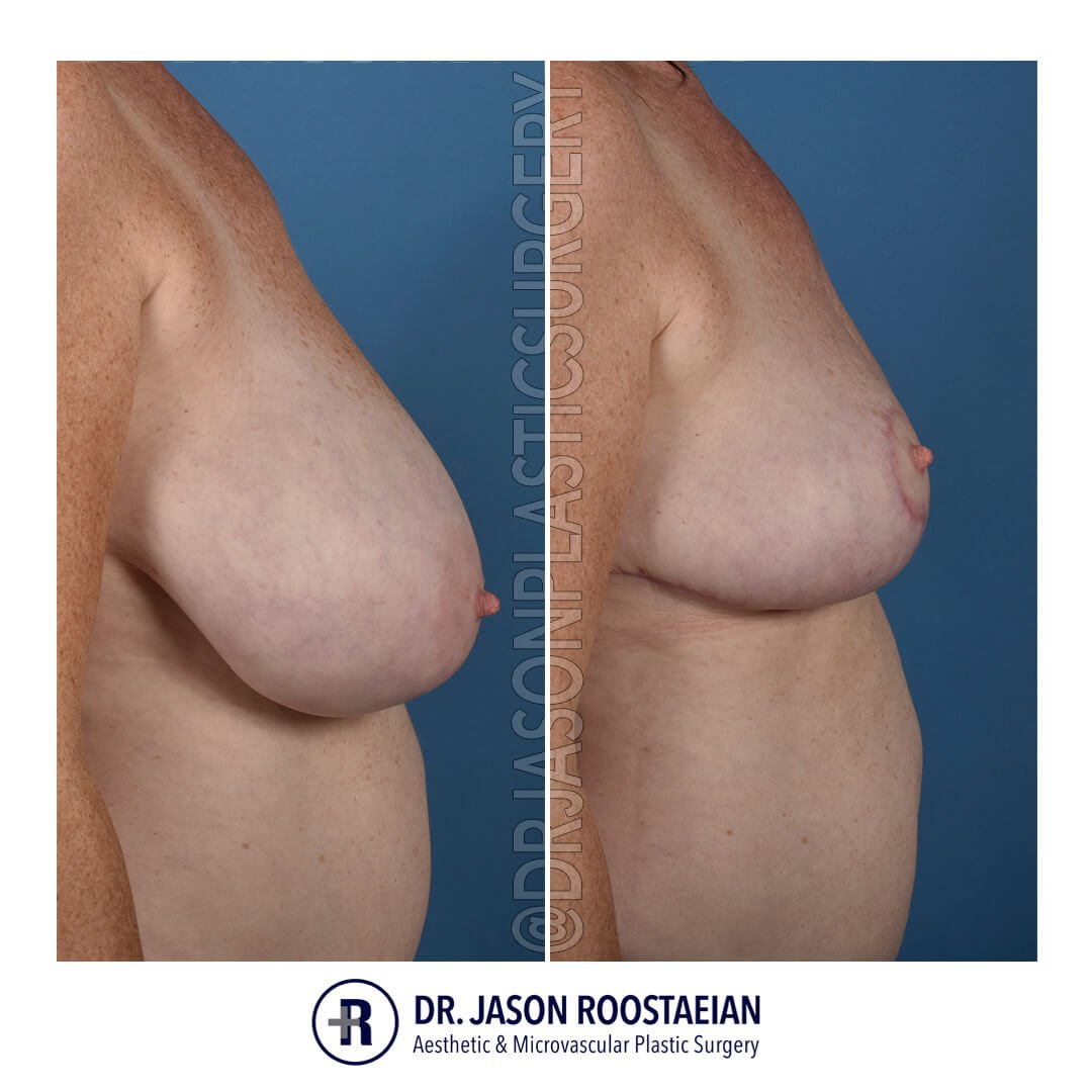 A right lateral view of Dr. Jason Roostaeian's natural looking breast reduction patient
