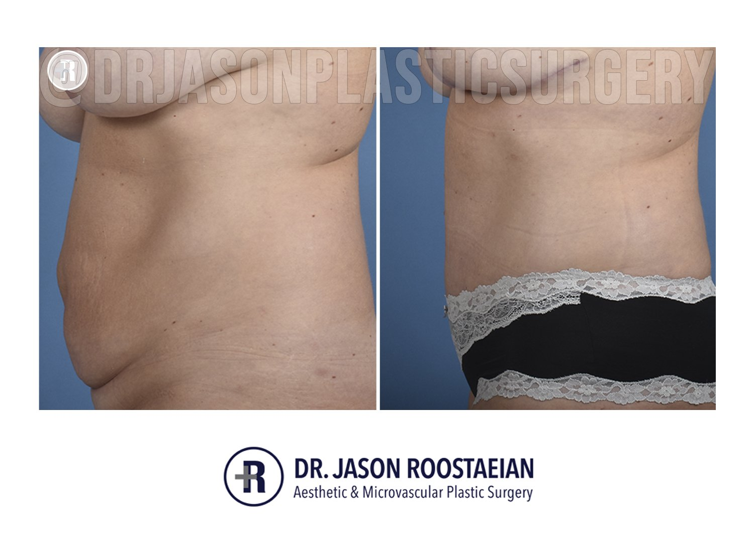 A before and after left lateral view of Dr. Jason Roostaeian's natural looking tummy tuck female patient 040221