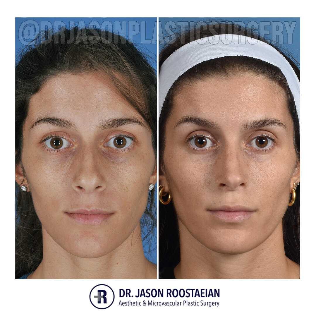 A before and after frontal view of Dr. Jason Roostaeian's female rhinoplasty patient 042721